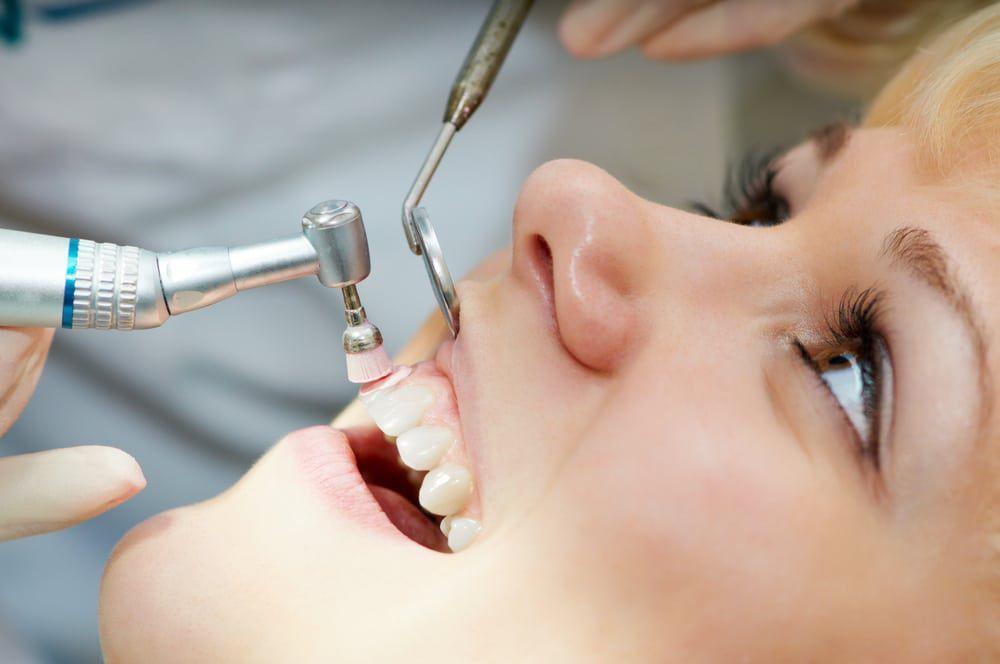 Dental hygiene, dental cleaning, dental checkups, routine exam