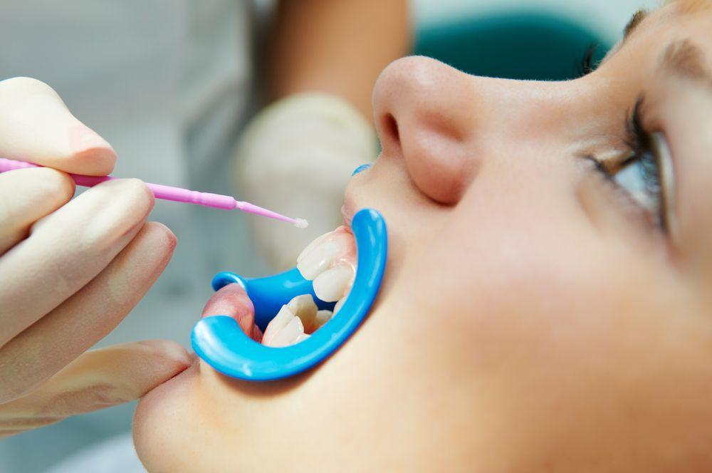 Dental Sealants, Preventative Dentistry