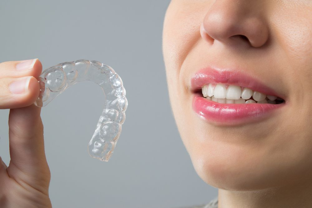 Invisalign trays, orthodontics, clear aligners