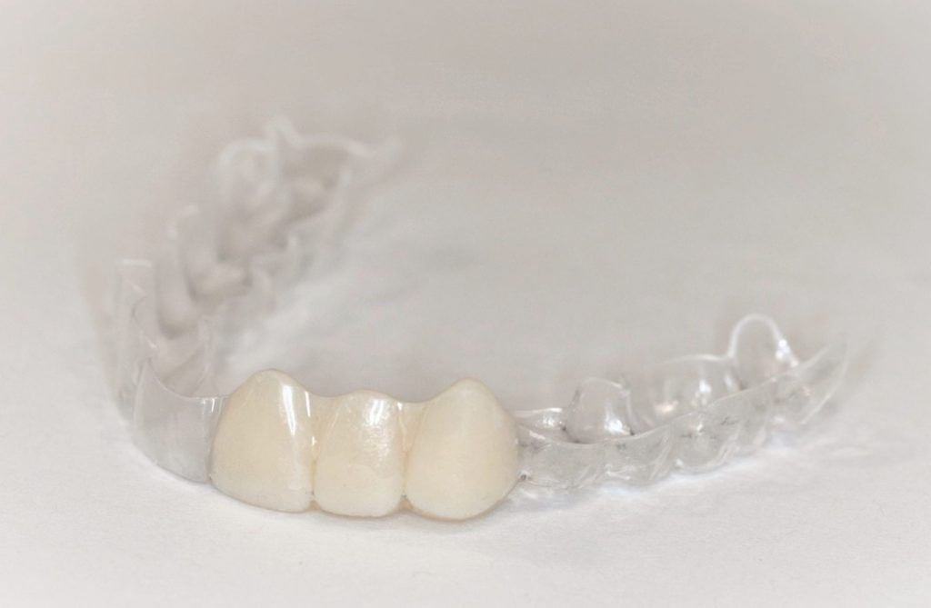 Essix retainer for missing teeth